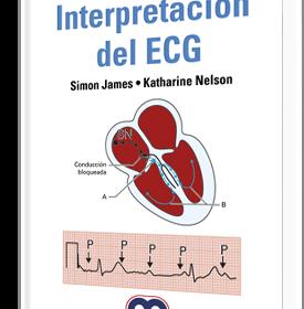 Manual de bolsillo Interpretación del ECG