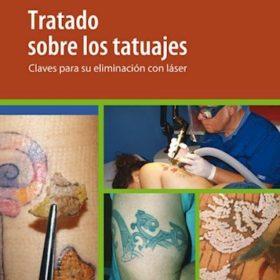 Tratado sobre tatuajes. Claves para su eliminación con láser