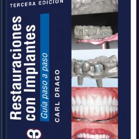 Restauraciones con Implantes