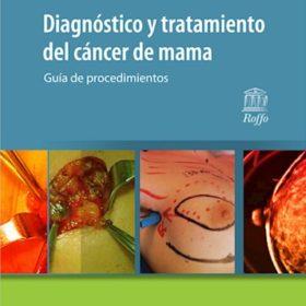 Diagnóstico y tratamiento del cáncer de mama. Guía de procedimientos