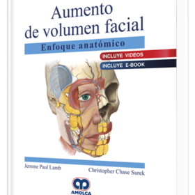 Aumento de volumen facial Enfoque anatómico