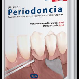 Atlas de periodoncia. Técnicas mínimamente invasivas y microquirúrgicas