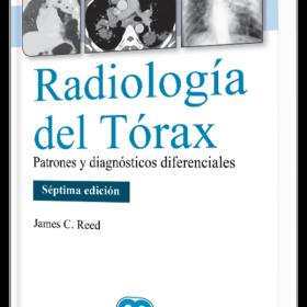 Radiología del tórax Patrones y diagnósticos diferenciales