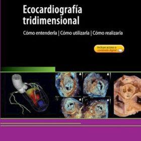 Ecocardiografía Tridimensional. Cómo entenderla, cómo utilizarla, cómo realizarla