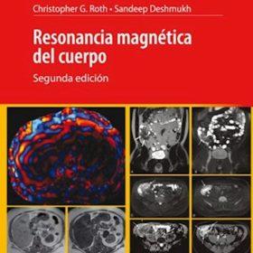 Resonancia Magnetica del Cuerpo