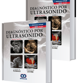 Diagnóstico por ultrasonido