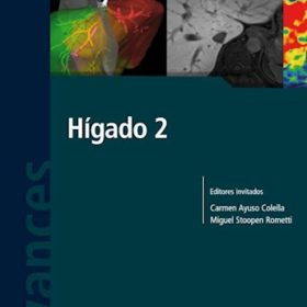 Avances en Diagnóstico por Imágenes: Hígado 2