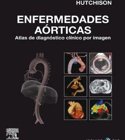 Enfermedades Aorticas. Atlas de Diagnostico Clinico por Imagen