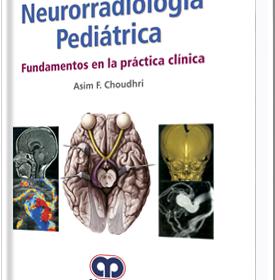 Neurorradiología Pediátrica. Fundamentos de la practica clinica