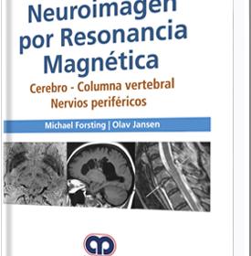 Neuroimagen por Resonancia Magnética