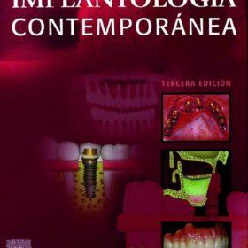 Misch – Implantologia Contemporanea 3era Edicion